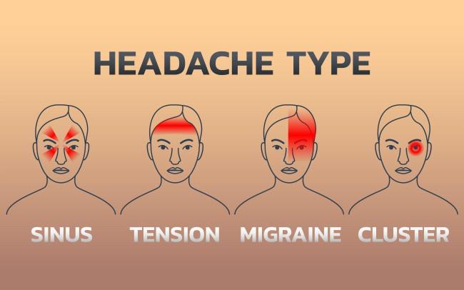 Kakve glavobolje mogu da ukažu na ozbiljne zdravstvene probleme