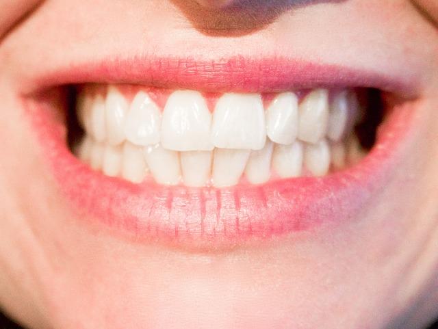 Otkrivamo: Koja hrana izbeljuje zube, a od koje hrane će vam zubi požuteti?