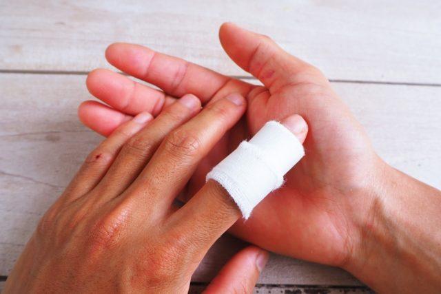 Zašto posekotine od papira toliko bole?