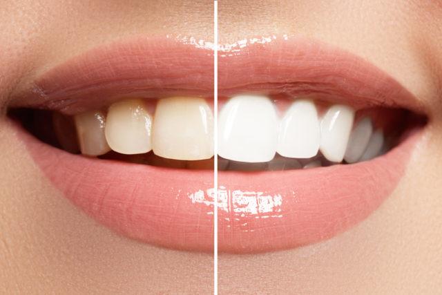 Kako jednostavno i efikasno izbeliti zube bez odlaska kod stomatologa