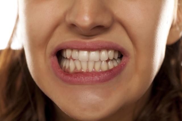 Šta izaziva škripanje zubima i kako da ga sprečimo