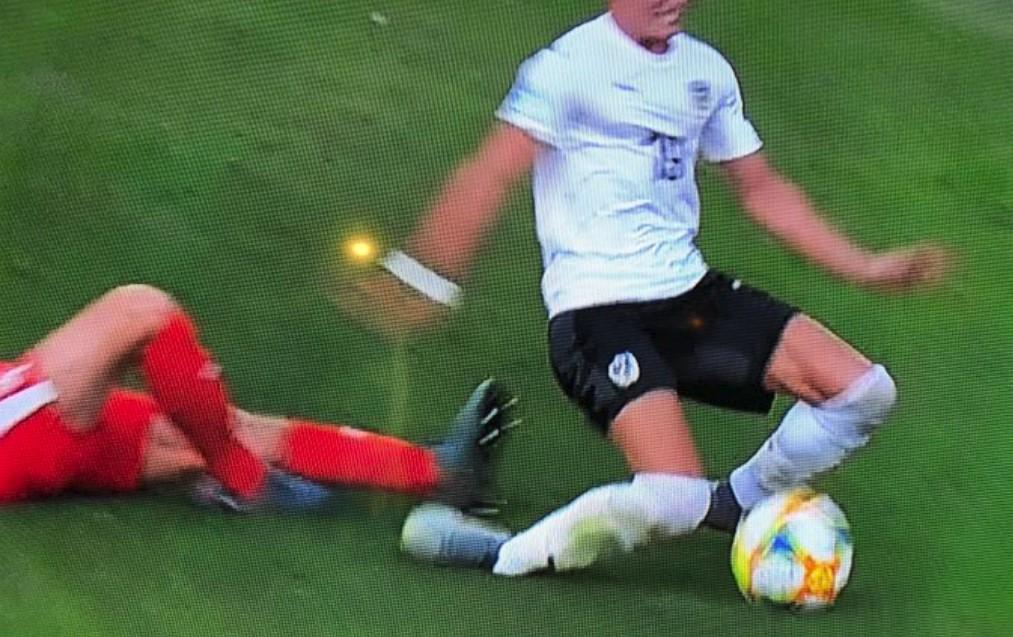Horor povreda austrijskog fudbalera! (VIDEO)