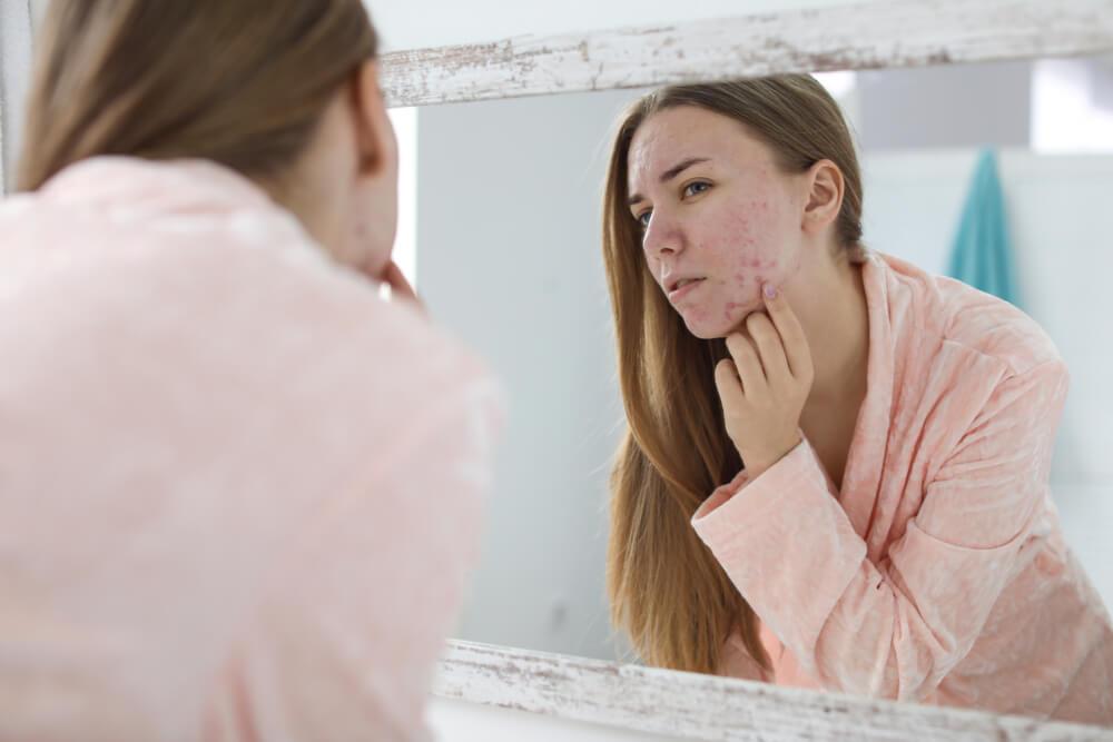 Nauka tvrdi da je dobro ukoliko imate akne