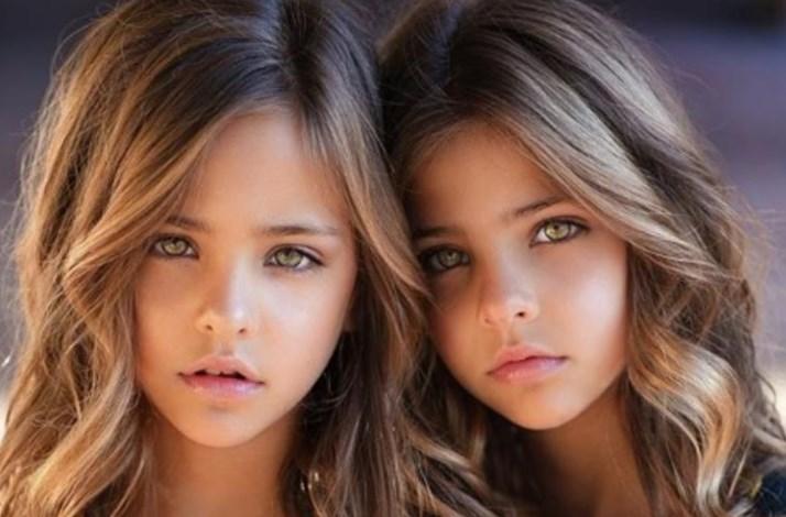 Evo šta se krije iza fotografije najlepših bliznakinja na svetu