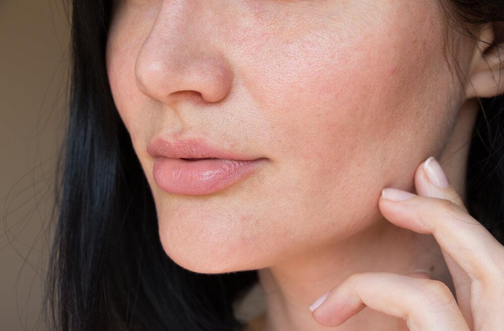 Ako vam je koža suva, bežite od ovih kozmetičkih proizvoda