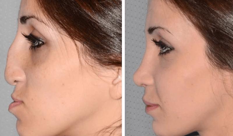 Pre i posle – Ovo su neke od najuspešnijih plastičnih operacija