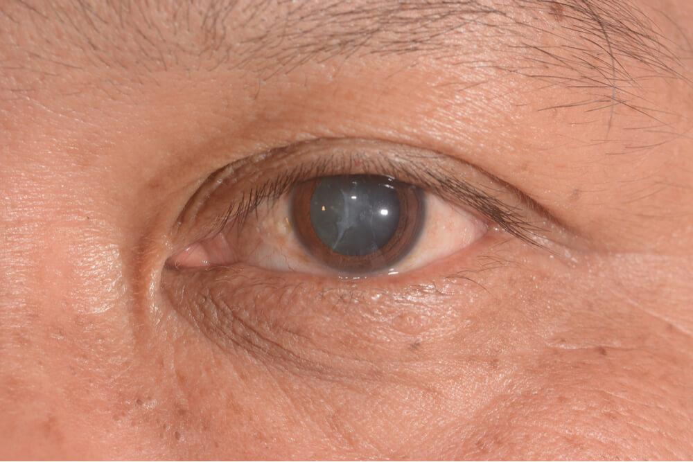 Kako prepoznati i lečiti kataraktu?
