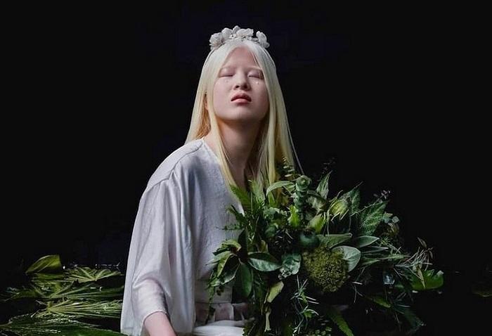 """Odbačena albino beba danas je model kompanije """"Vogue""""!"""